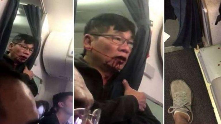 United Airlines te'n Passenger khat taalkaih khiatgawp ahih manin mipi so ngeingai ~ ZD
