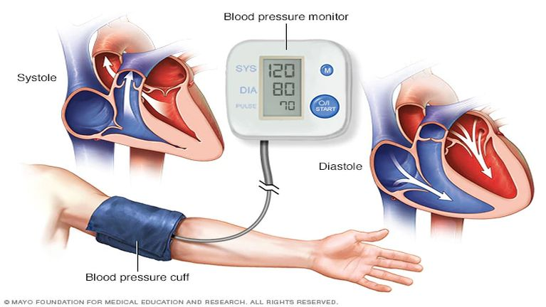 Sikhang natna (High Blood Pressure)